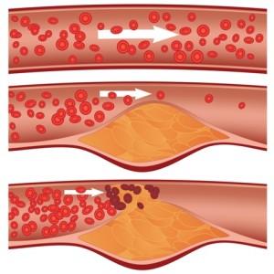 Hajszálerek beszűkülése szívinfarktust okozhat